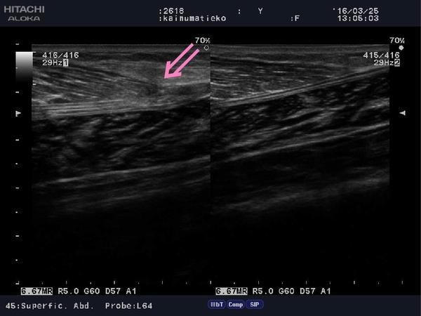 Calf muscle strain.jpg