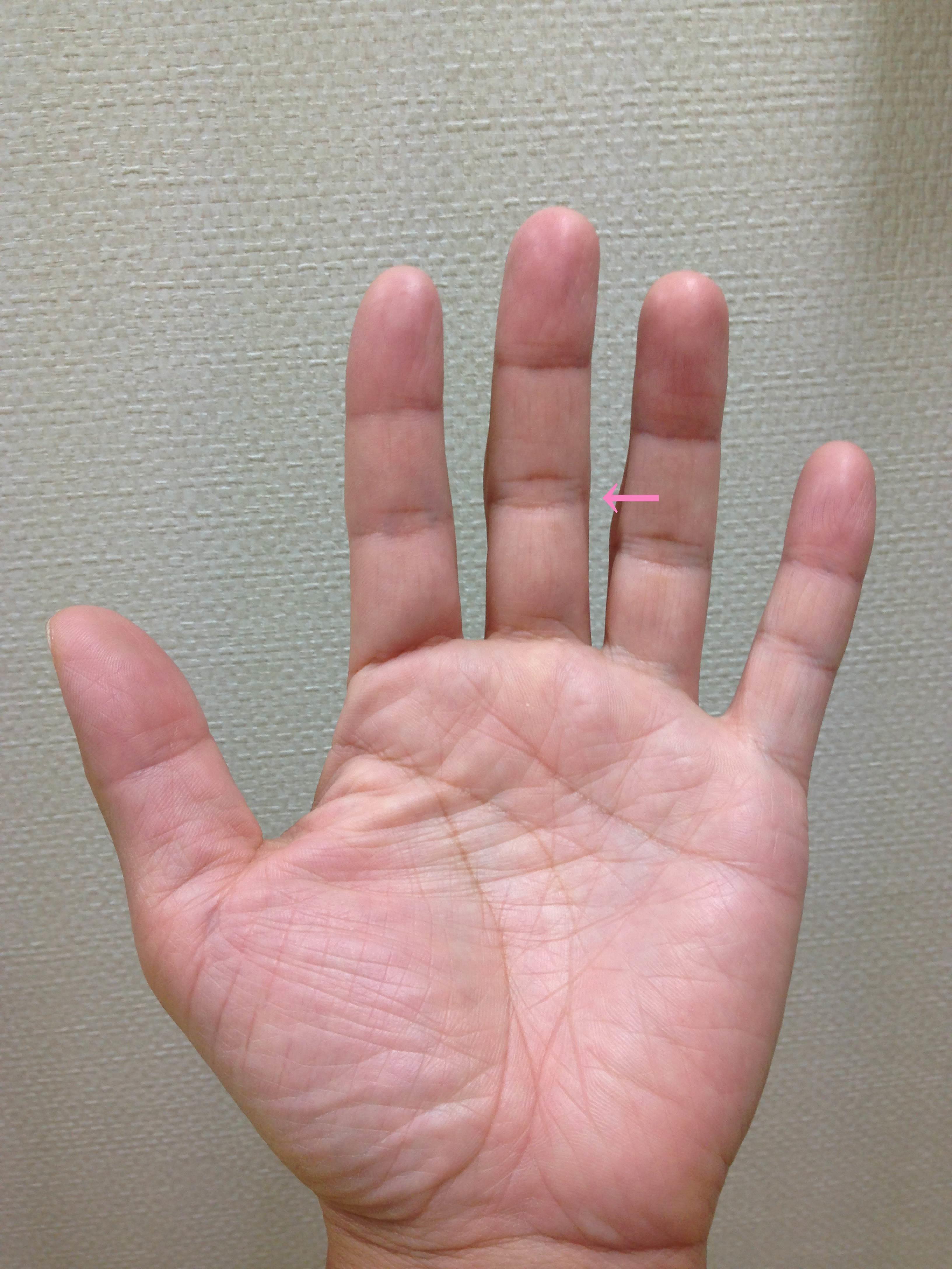 「突き指」「掌側板損傷」