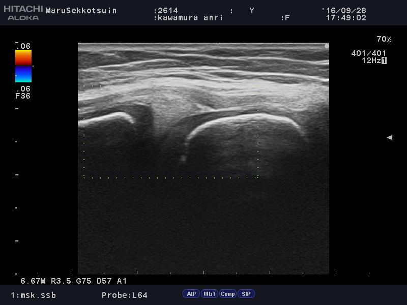 膝内側の靭帯のケガ
