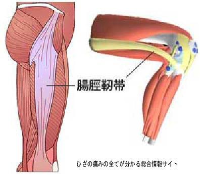 大腿筋膜脹筋.jpg