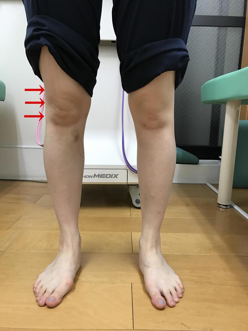 腸脛靭帯炎.jpg