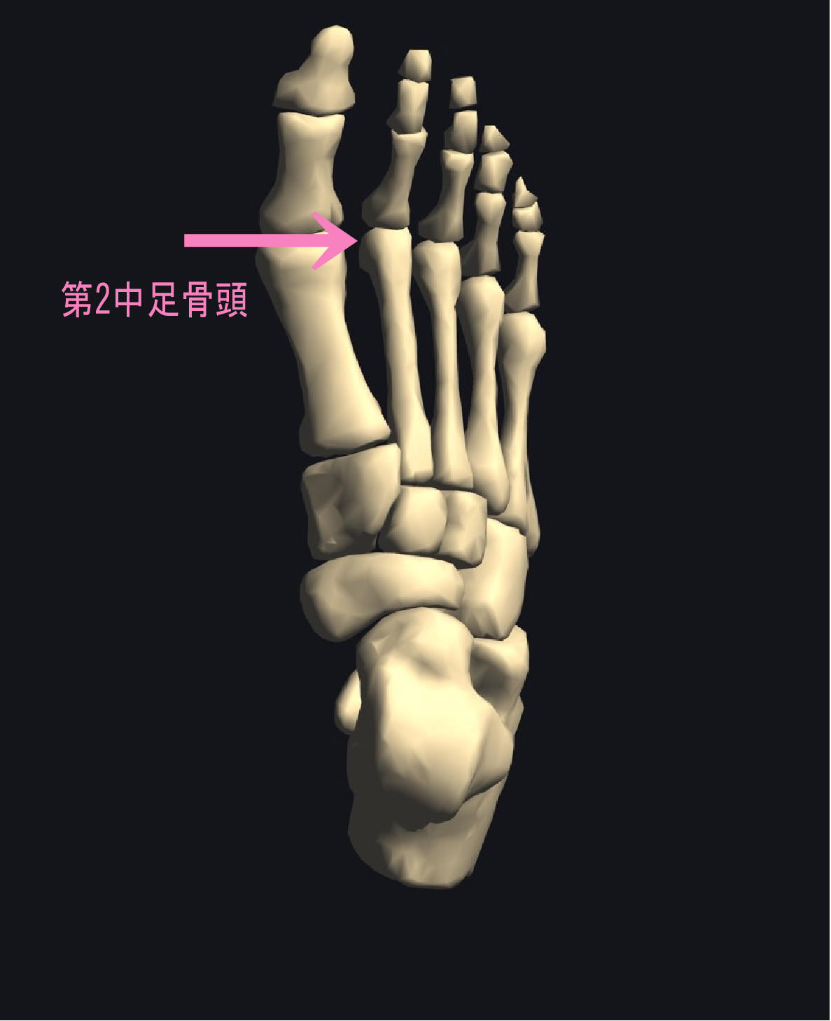 足の指の付け根の痛み