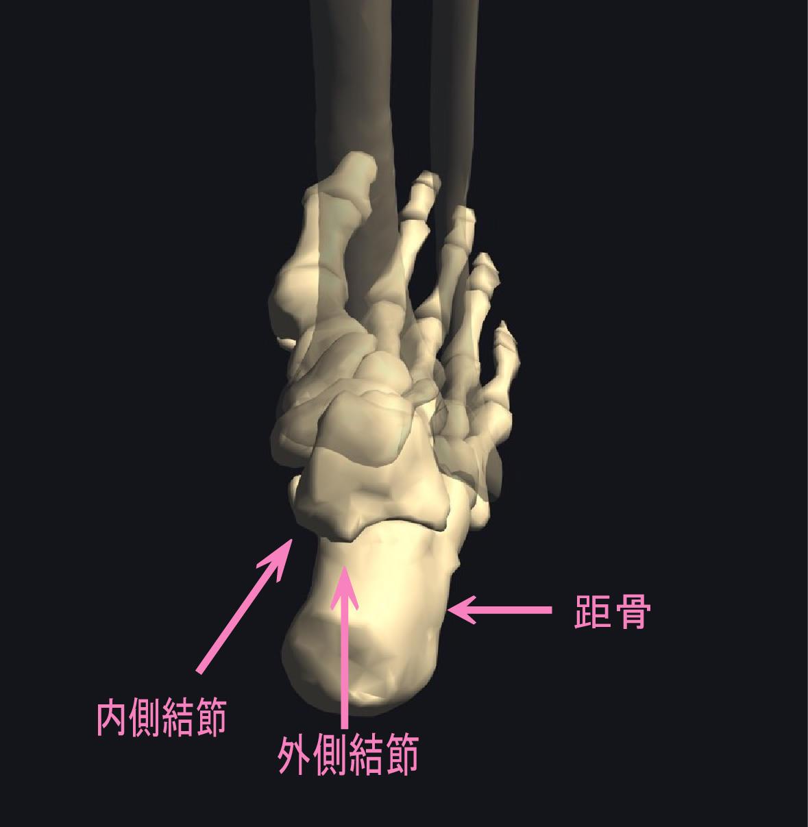 アキレス腱の外側の痛み「三角骨障害」
