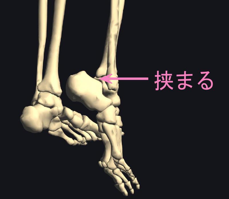 三角骨障害.jpg