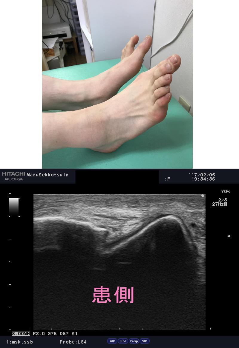 「足首の痛み」流行病