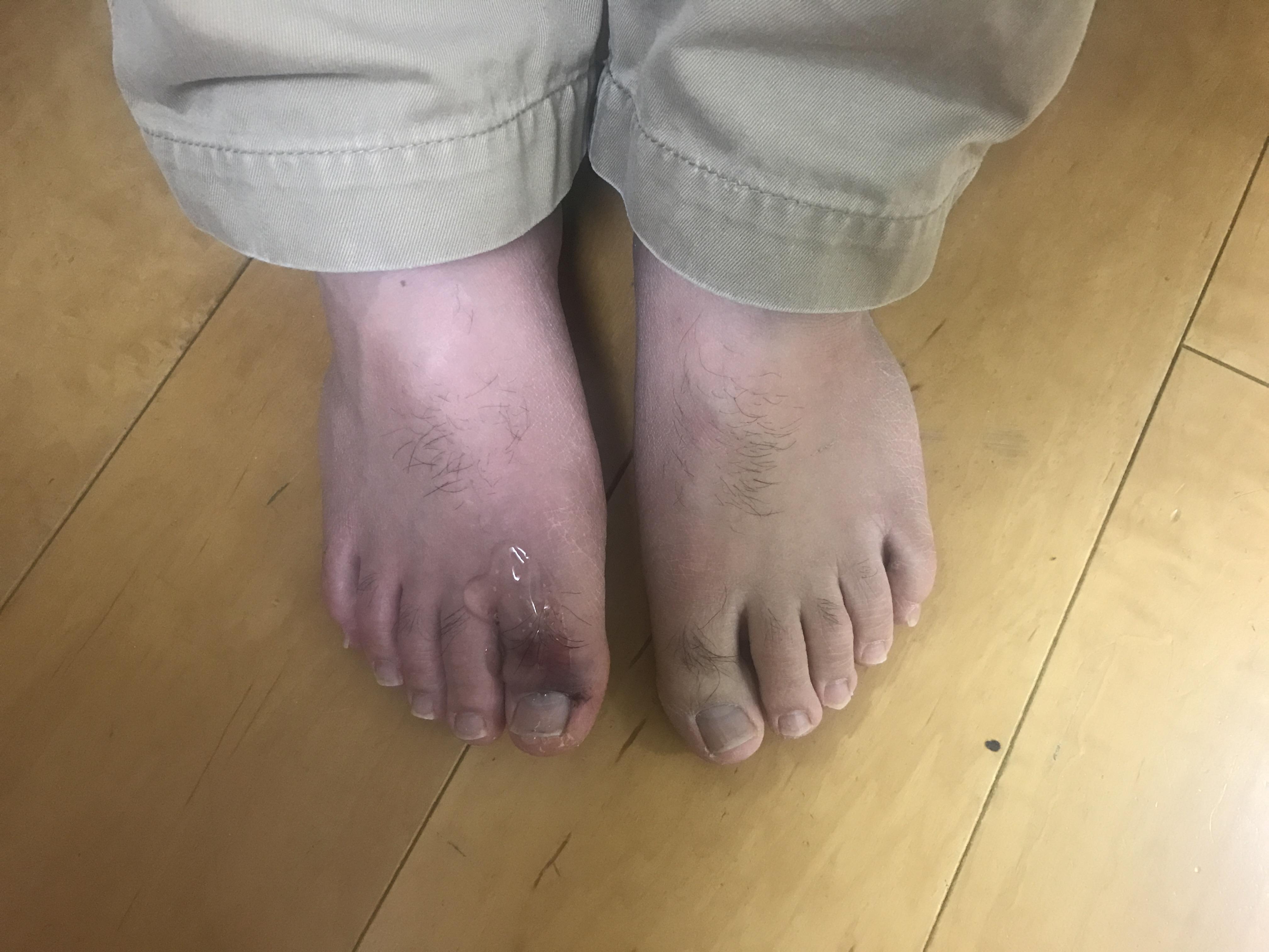 「手・足の指の腫れ痛み」意外と・・・