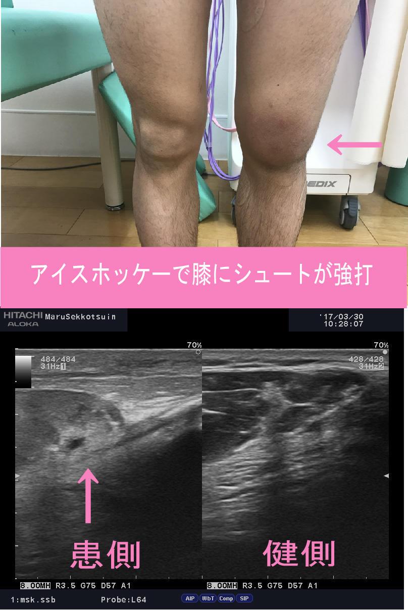 膝の腫れ.jpg