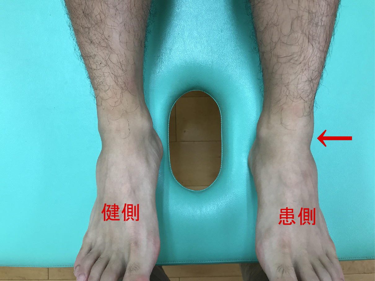 足首の捻挫(長趾伸筋腱)