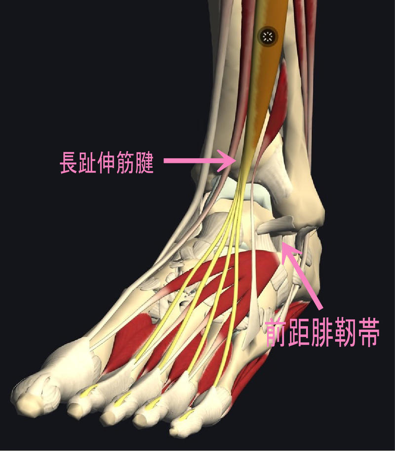 長趾伸筋腱ねんざ.jpg