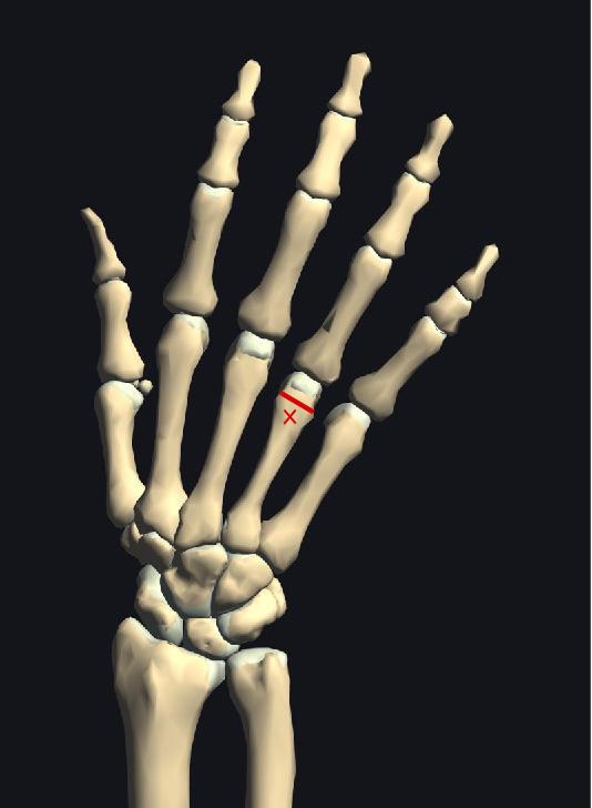 中手骨遠位端部骨折2.jpg
