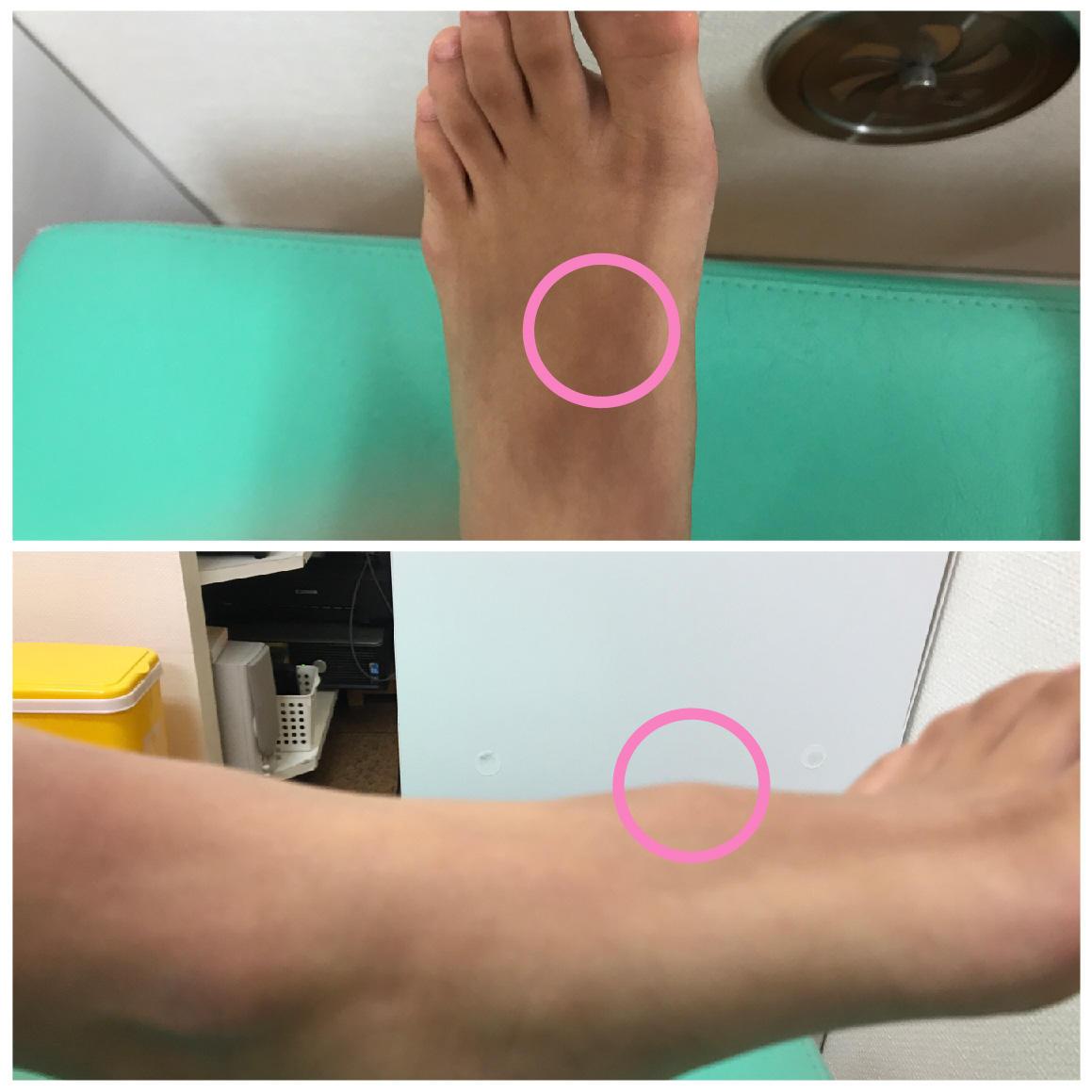 足のガングリオン