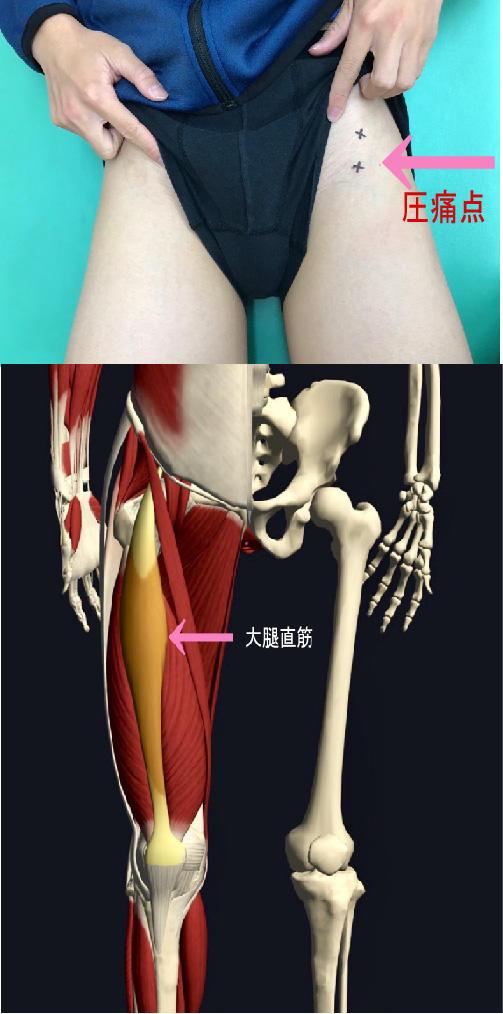 大腿直筋.jpg