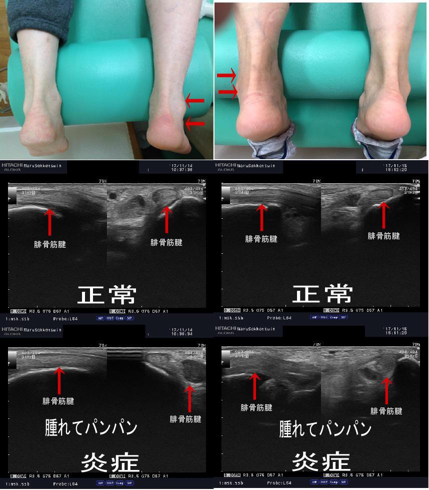 足の「外くるぶしの後ろの痛み」