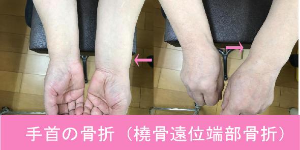 手首の骨折(橈骨遠位端部骨折)