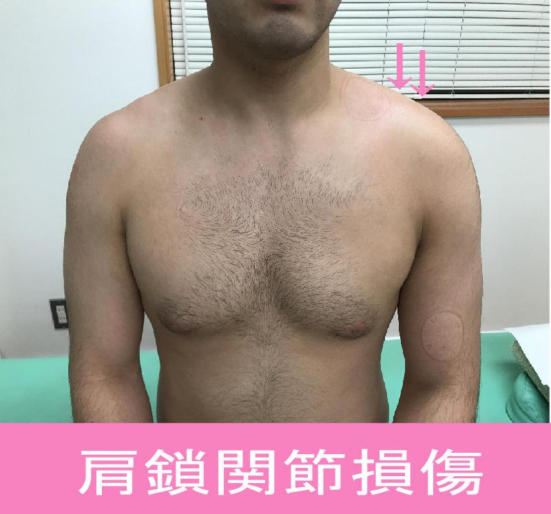 「肩鎖関節損傷(捻挫・脱臼)」肩の痛み