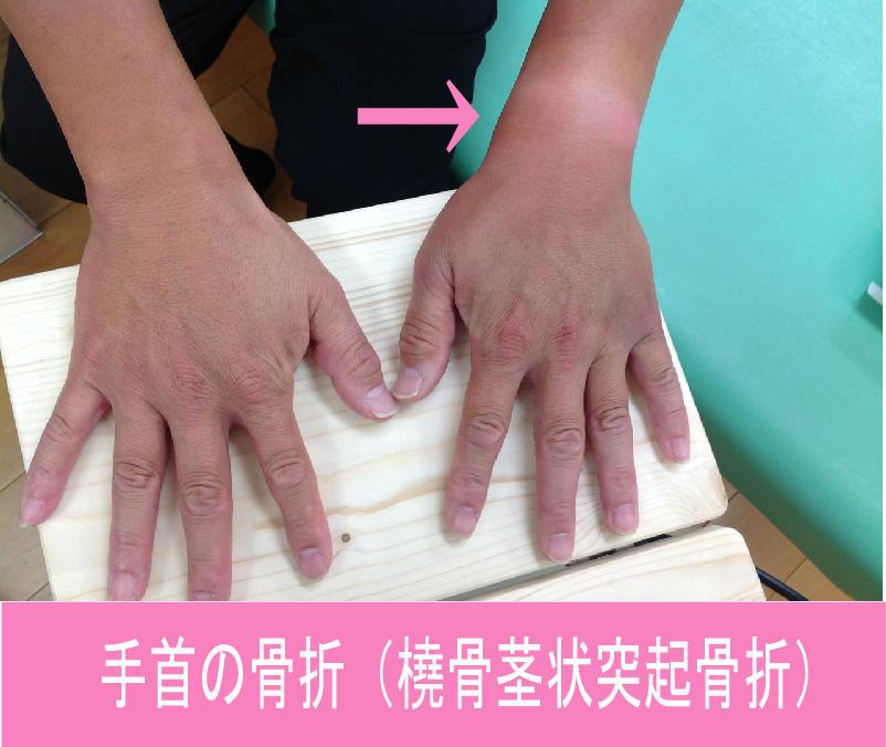手首の骨折(橈骨茎状突起骨折)