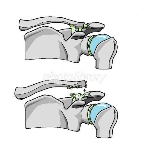 肩鎖関節脱臼(亜脱臼)