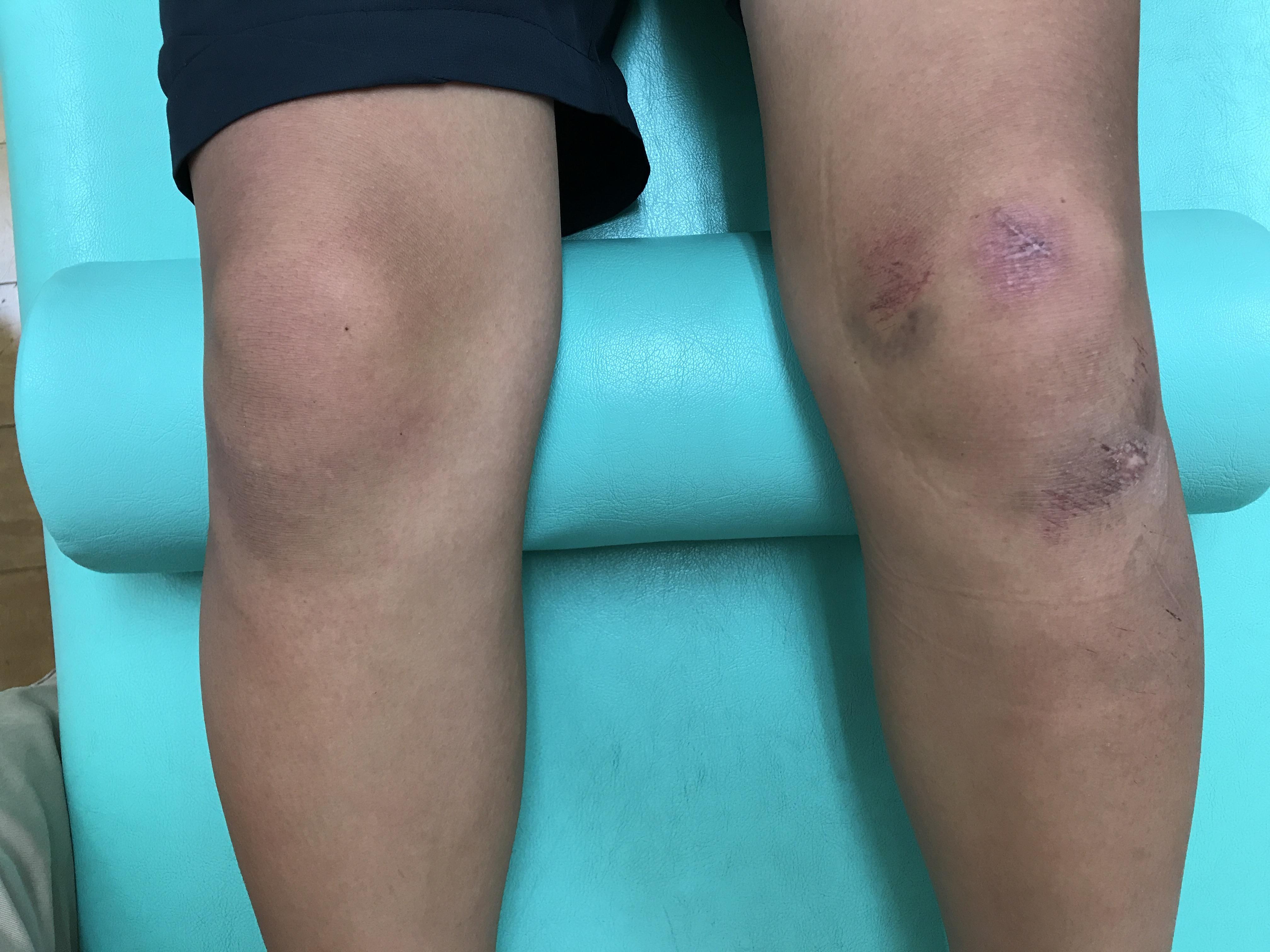 膝の内側の打撲