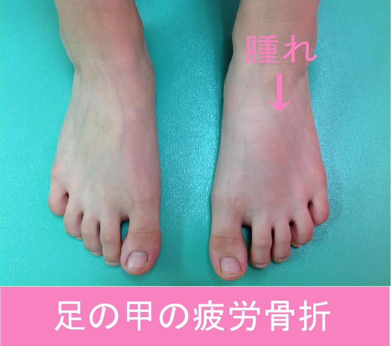 足の甲の疲労骨折