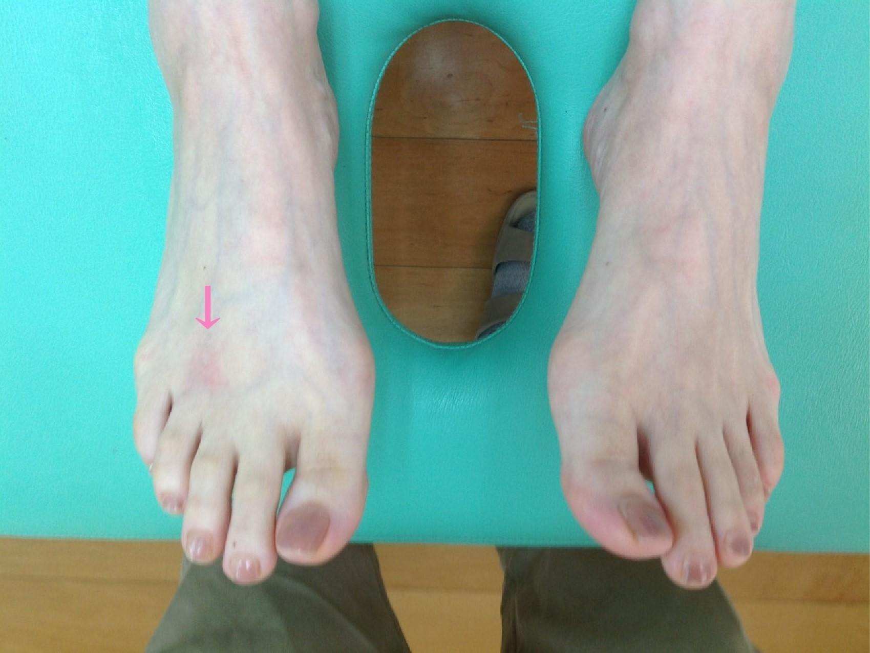 足の中指・薬指の付け根の痛み