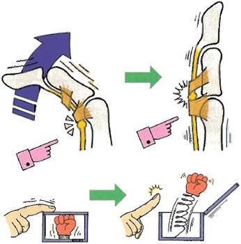 指を伸ばす時「バチンッ」と引っ掛る方