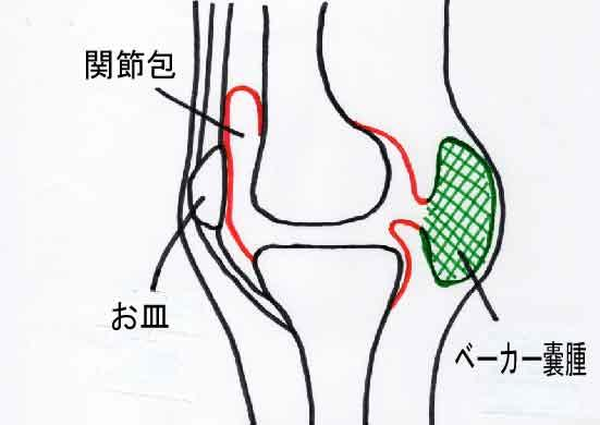 膝裏の痛み・違和感