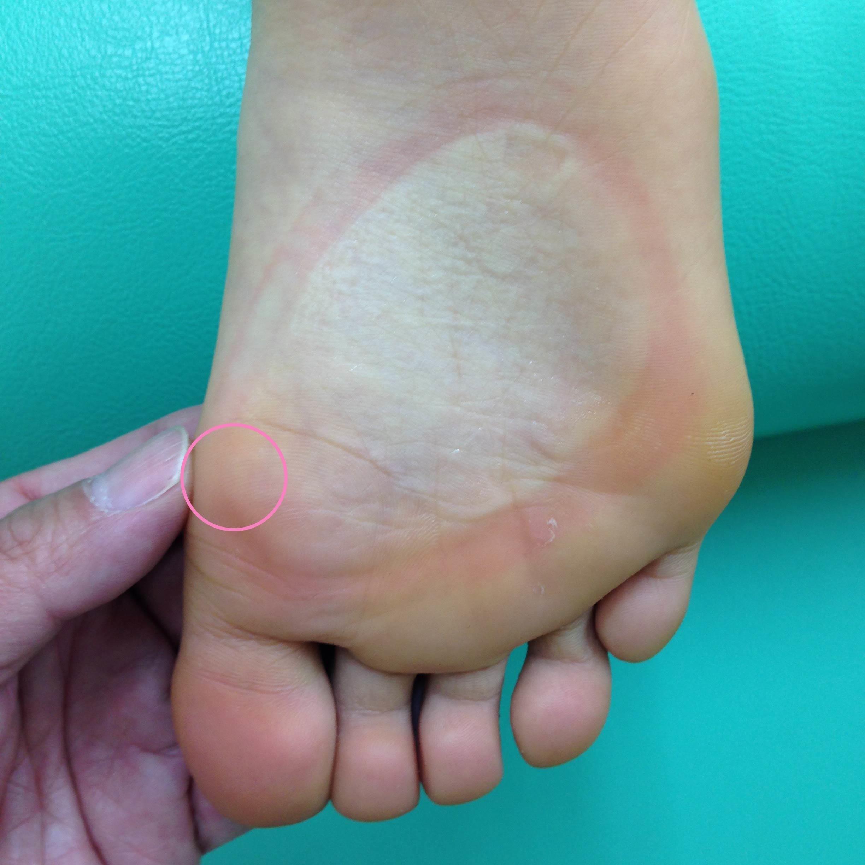 足の親指の付け根・母趾球付近の痛み