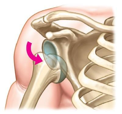 肩関節(亜)脱臼