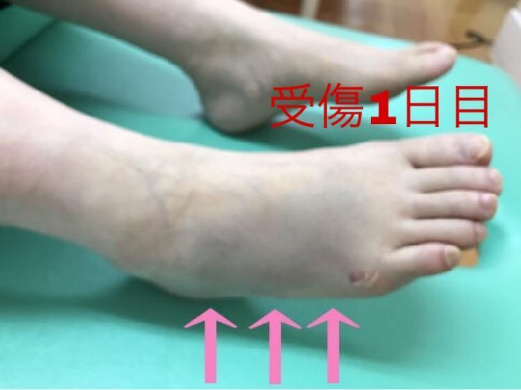 足首の捻挫・骨折後の皮下出血(アザor内出血)