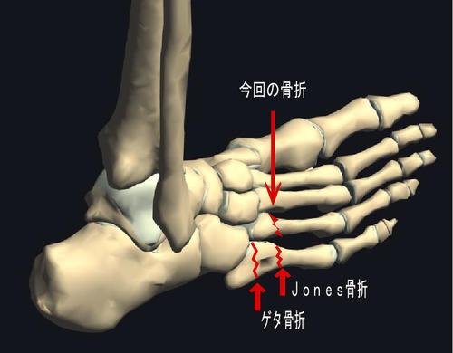 第4中足骨骨折2.jpg