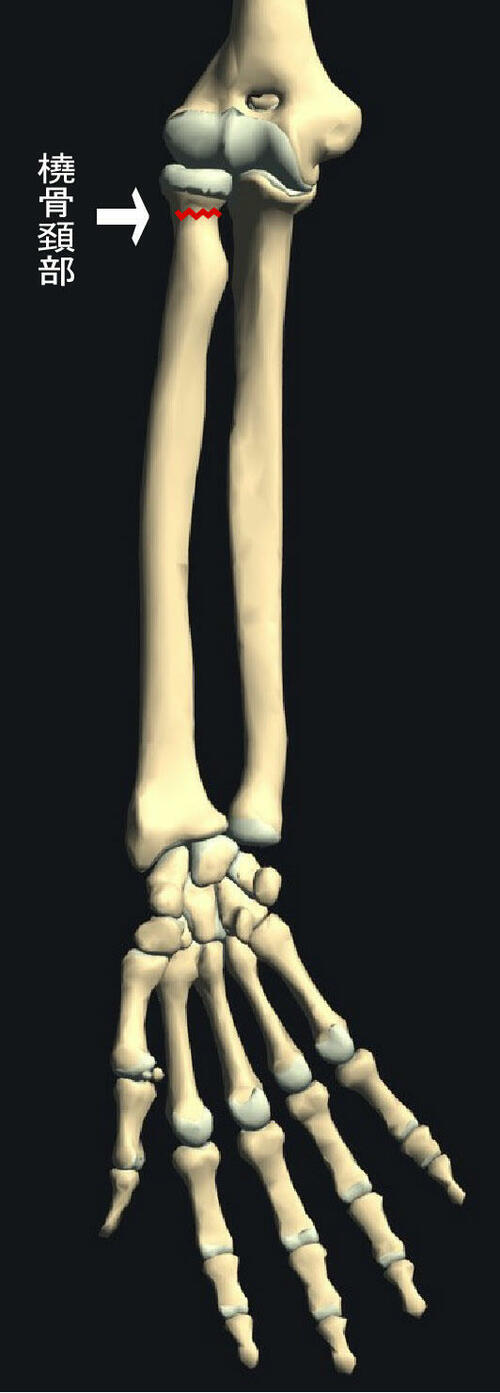 橈骨近位端骨端線離開.jpg