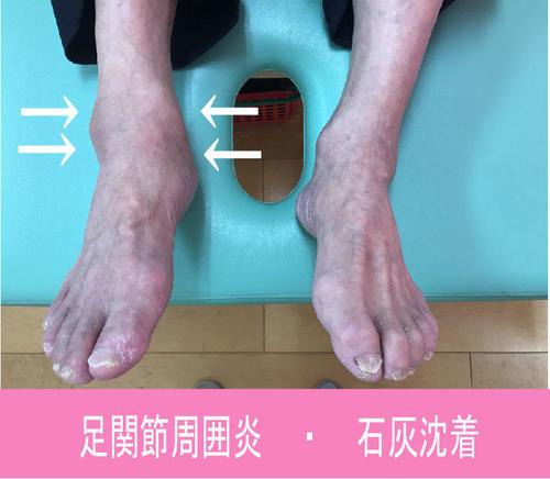 足関節周囲炎.jpg