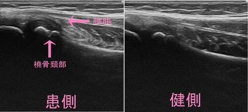 橈骨頚部骨折.jpg