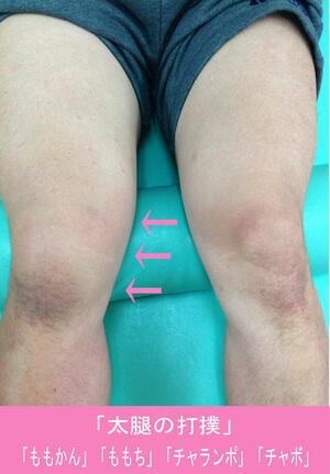太腿の打撲.jpg