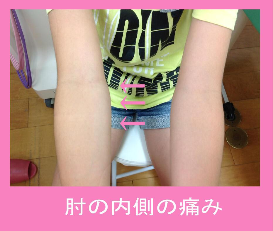 肘の内側の痛み