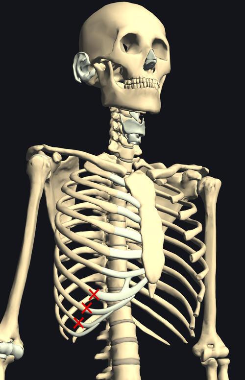肋骨痛1.jpg