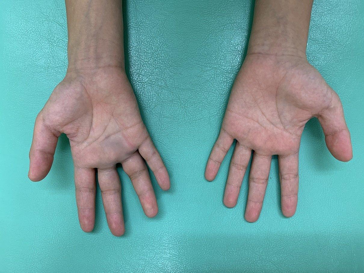 指の骨折「基節骨骨折」