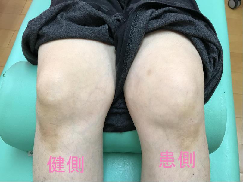 http://maru84.com/update/up-img/knee3.jpg